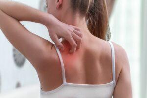 Łupież pstry – co to za choroba?